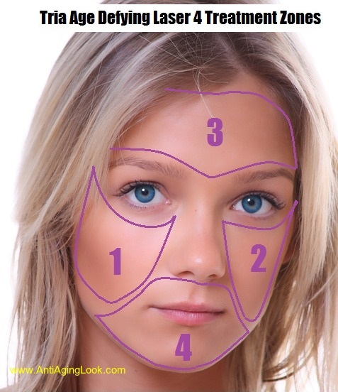 TRIA age defying laser four treatment zones on face