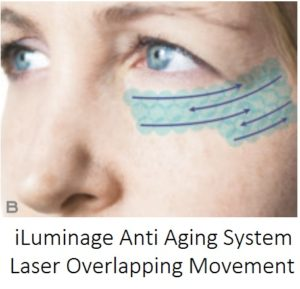 Iluminage laser treatment review