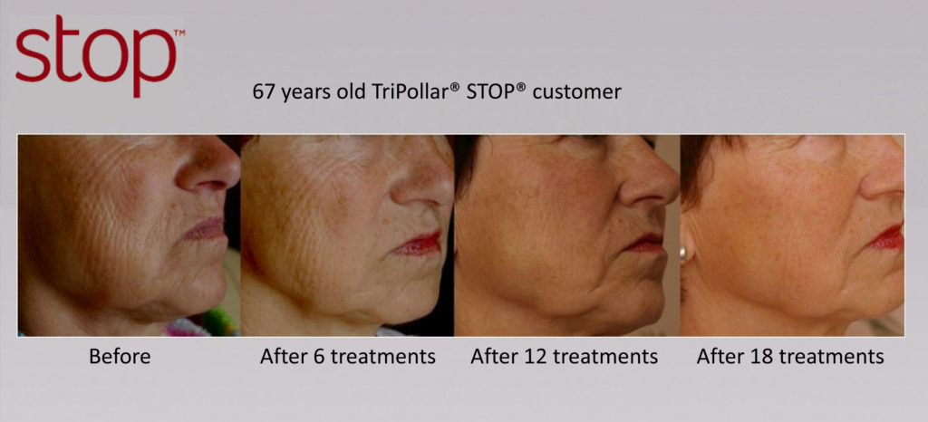 Tripollar Stop anti aging pictures before and after