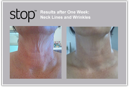 Tripollar anti aging (RF) Face & Neck Skin Tightening
