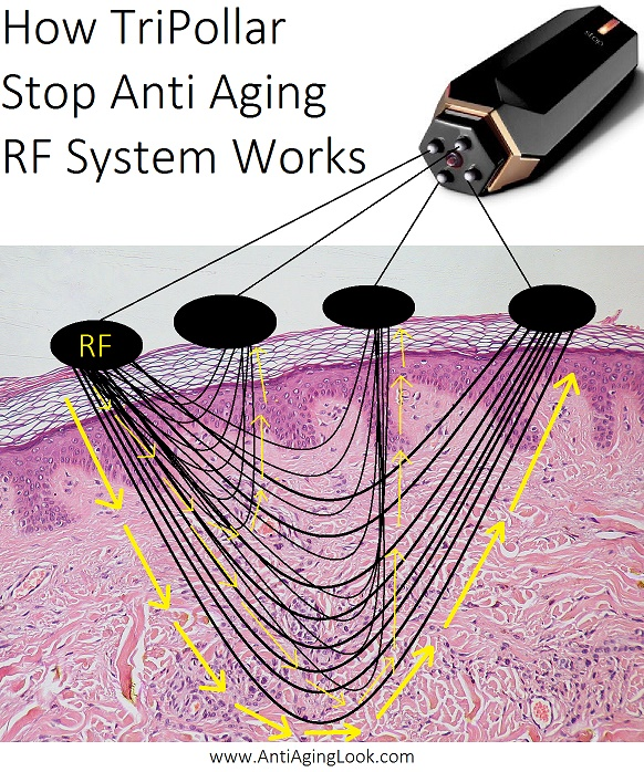 how tripollar stop anti aging system works